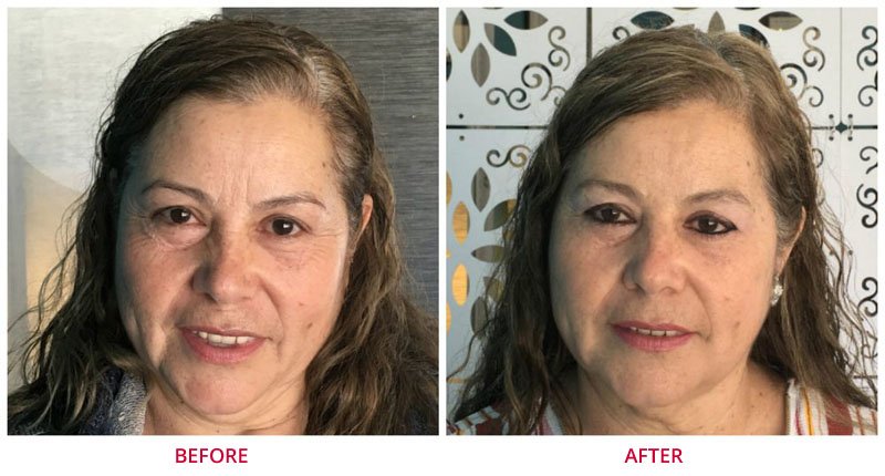 microneedling before after